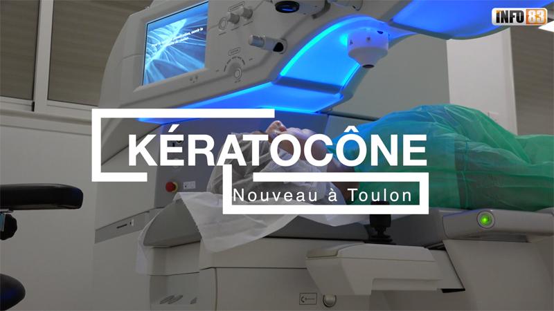 Traitements innovants contre le kératocône à Toulon au Centre Laser Elsan Vision